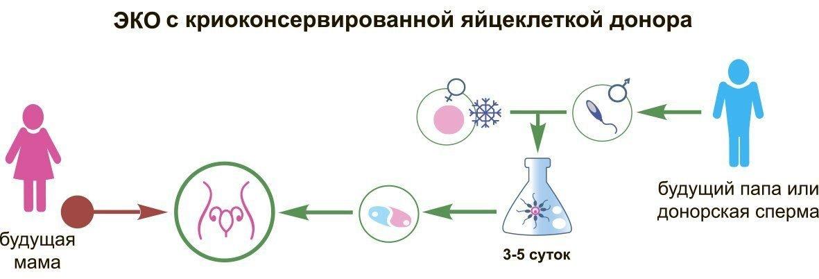 ЭКО с яйцеклеткой