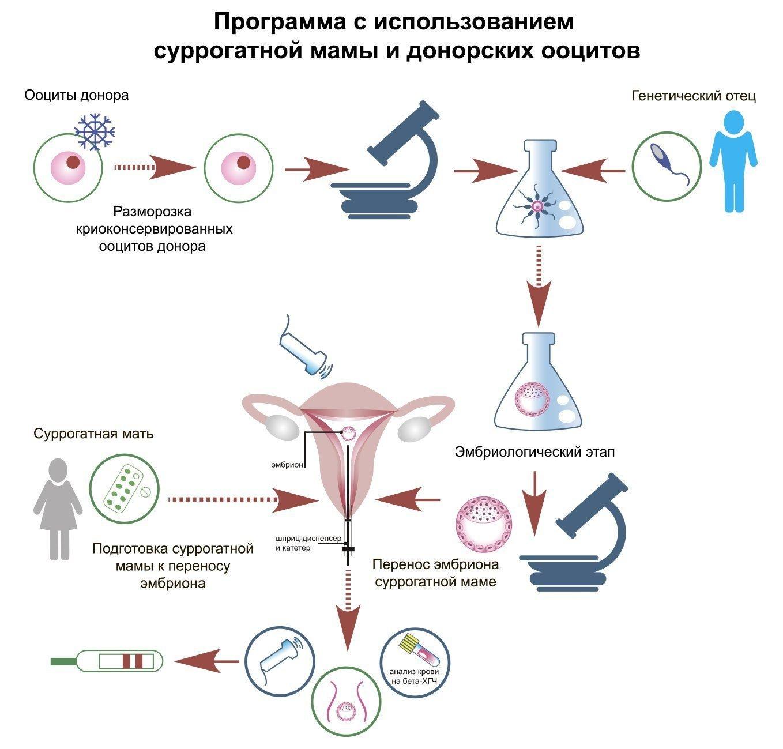 Эко С Суррогатной Мамой И Донорскими Ооцитами